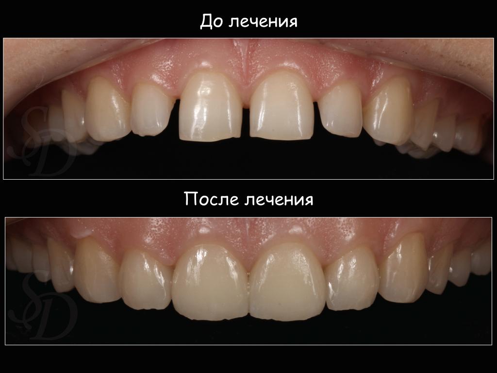 3д отбеливание зубов